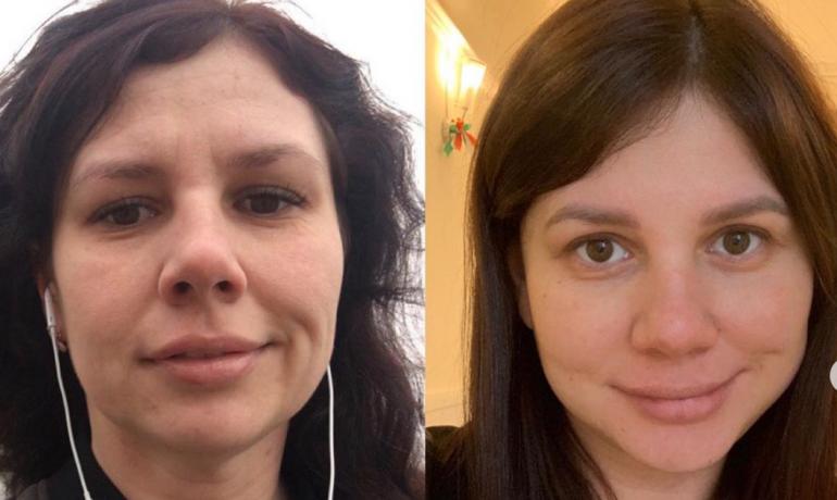 Marina pro svého muže podstoupila plastické operace. (IG @marina_balmasheva)