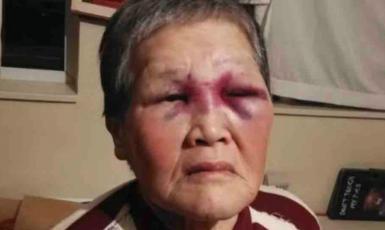 Třiaosmdesátiletá Xiao Zhen Xie po rasově motivovaném útoku. (Gofundme)